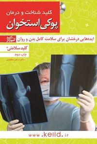 شناخت و درمان پوکی استخوان